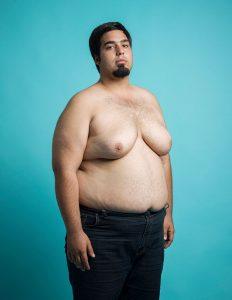 Soy hombre y tengo senos: 7 soluciones